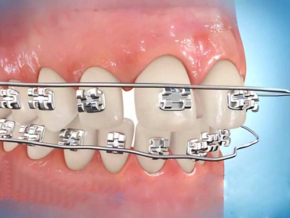 Nguyên nhân làm răng hô và cách khắc phục